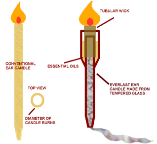 How ear wax candles work best candle 2018 best 25 ear wax removal candle ideas on natural do solutioingenieria Image collections